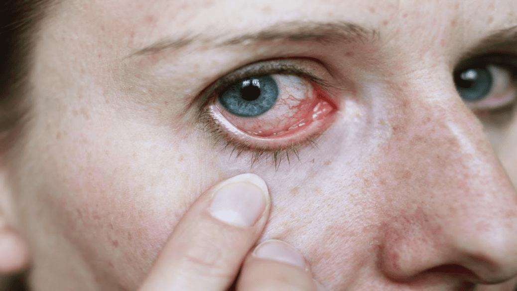Vermelhidão no olho