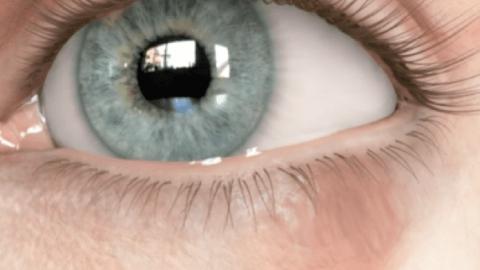 Calázio no olho: o que é, causas, sintomas e tratamento