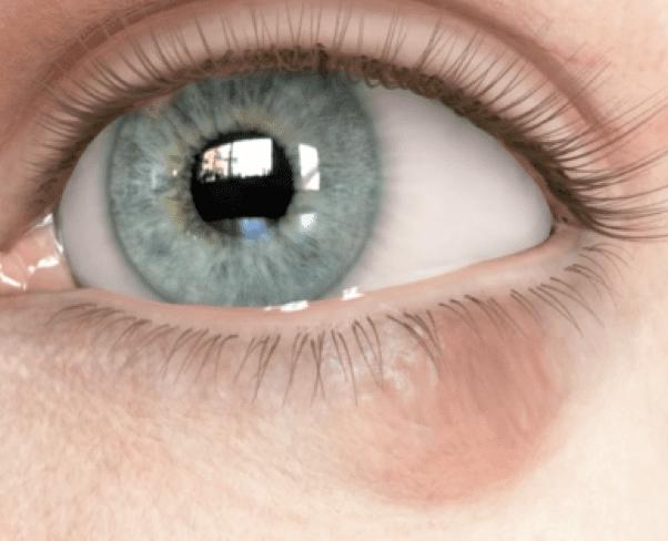 Calázio no olho o que é, causas, sintomas e tratamento