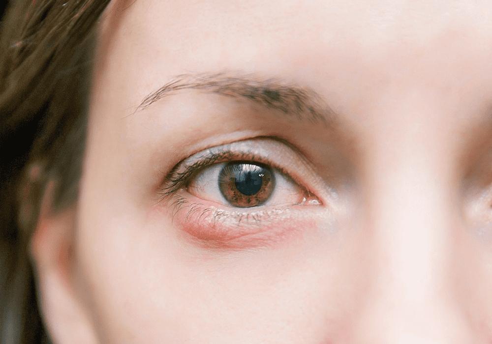 imagem de calázio no olho