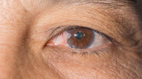 Pterígio: o que é, sintomas, causas, tratamento e como resolver