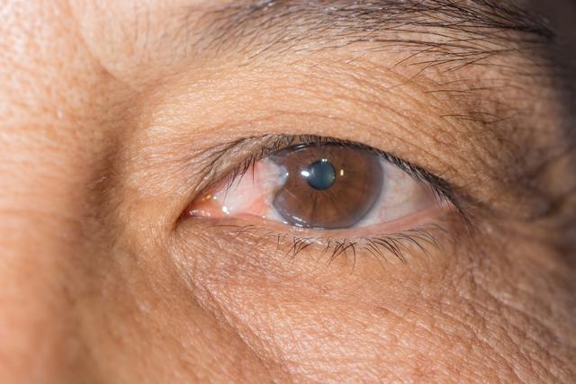 pterígio no olho