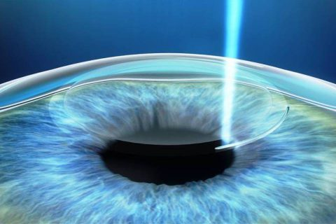 Conheça os tipos de cirurgias corretivas para os olhos