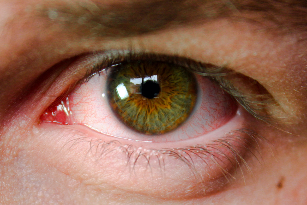 olho verde irritado