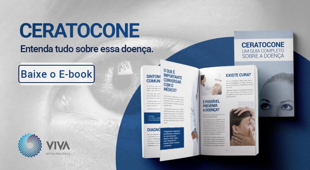 e-book ceratocone
