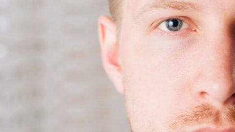 Ceratocone: o que é, causas, sintomas e diagnóstico