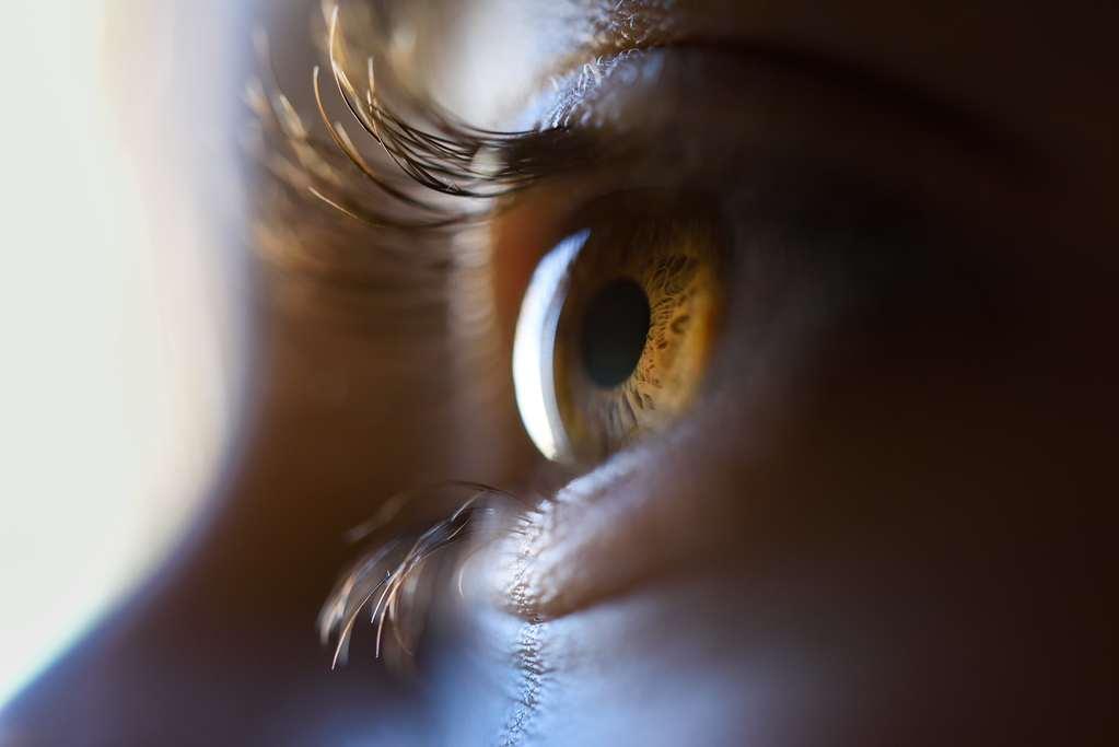 Olhos castanho sem toxoplasmose ocular