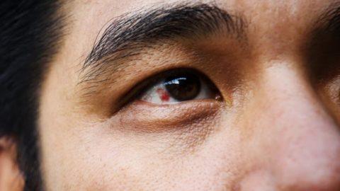 Mancha vermelha no olho: o que é e como tratar