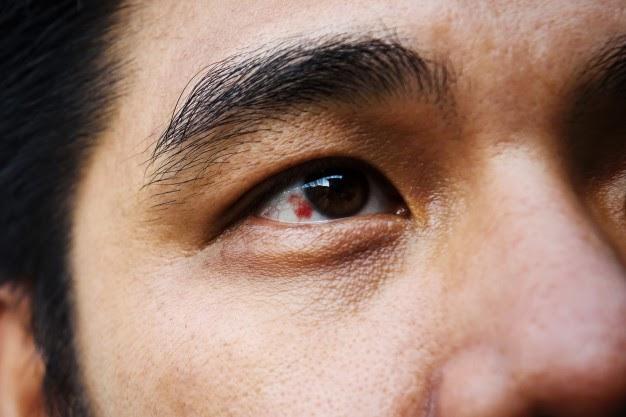 Mancha vermelha no olho