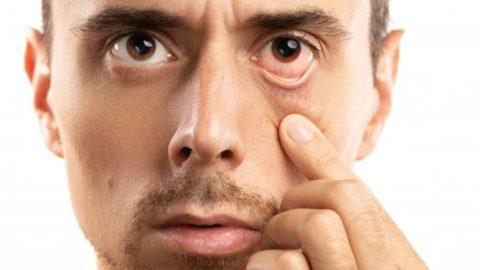 8 cuidados com a vista no inverno