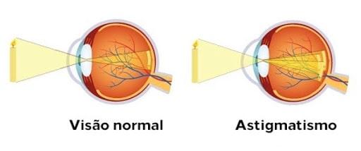 Doenças refrativas: visão normal x astigmatismo