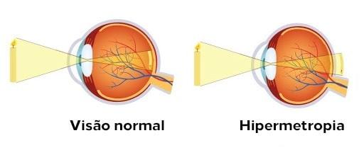 Doenças refrativas: visão normal x hipermetropia