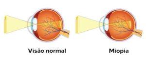 visão-normal-x-miopia