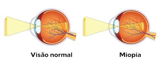 Doenças refrativas: visão normal x miopia