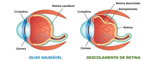 Riscos da alta miopia: deslocamento da retina