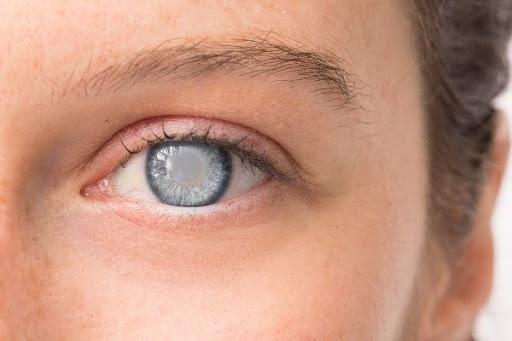 Riscos da alta miopia: catarata