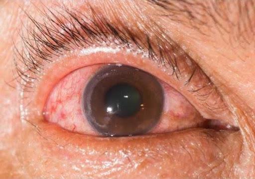 Riscos da alta miopia: glaucoma