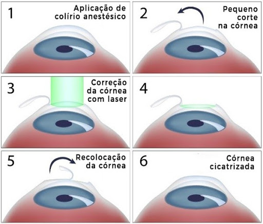 Cirurgia para hipermetropia LASIK