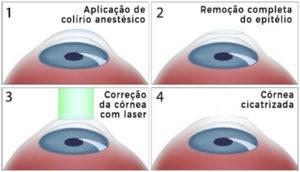 Cirurgia para hipermetropia PRK