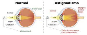 Visão alto astigmatismo