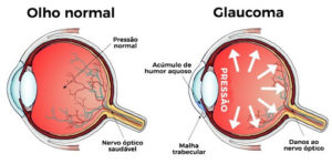 Pressão alta e glaucoma: existe alguma relação?