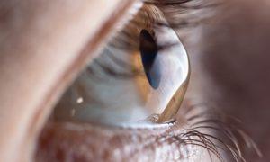 Alta miopia pode causar ceratocone