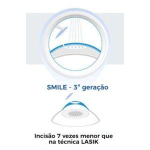 cirurgia-SMILE