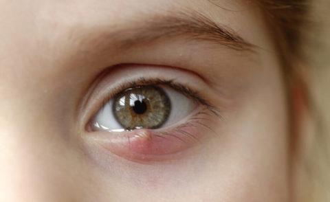 O que é Terçol: causas, sintomas, tratamento e risco de contágio