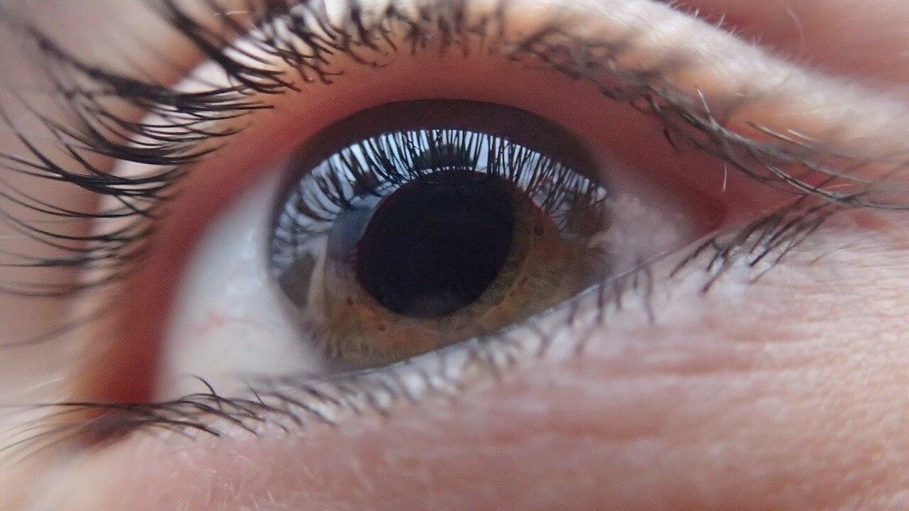 Quais são os tipos de glaucoma?