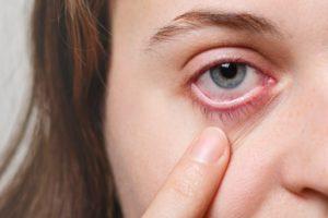 alergias nos olhos