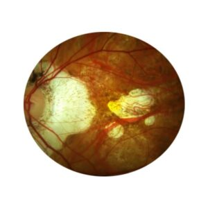 Maculopatia miópica