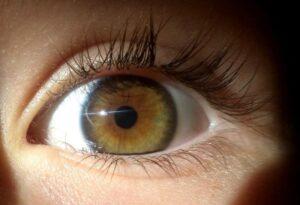 heterocromia-central